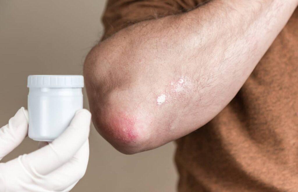 Treatment of Seborrhoeic Dermatitis