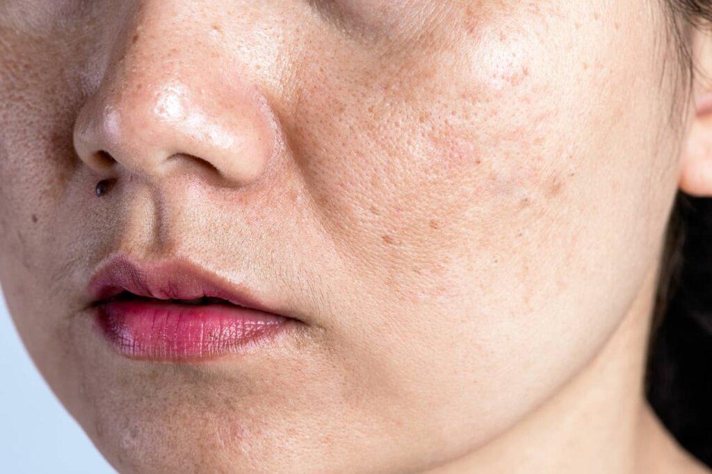 What are the symptoms of Seborrhoeic Dermatitis