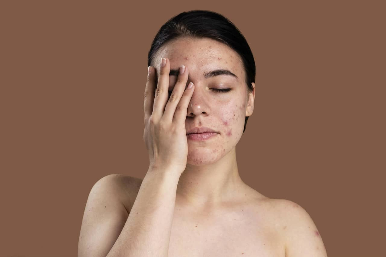 What is seborrhoeic dermatitis and its causes and treatments